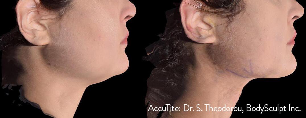 AccuTite™ Patient 2