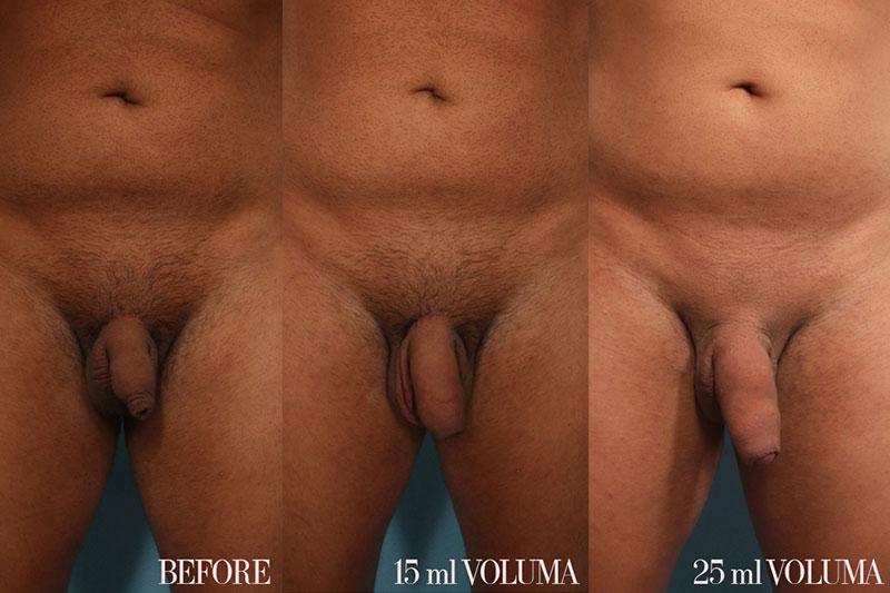 Penis Enhancement and Enlargement