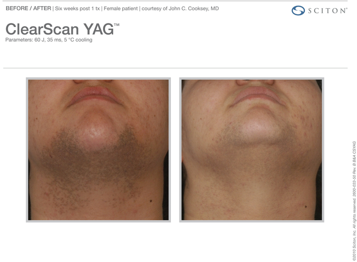 ClearScan YAG actual patient results