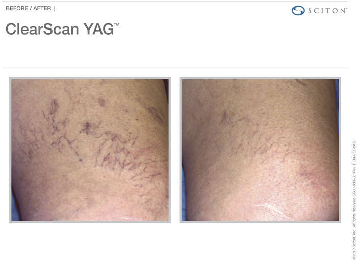 ClearScan actual patient vein results
