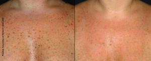Remedies for Sun Damaged Skin