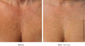 Remedies for Sun Damaged Skin2