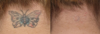 Laser Tattoo Removal Actual Patient 4