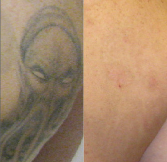 Laser Tattoo Removal Actual Patient 9
