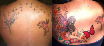 Laser Tattoo Removal Actual Patient 3