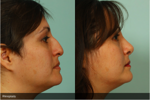 Rhinoplasty Before and After Photos