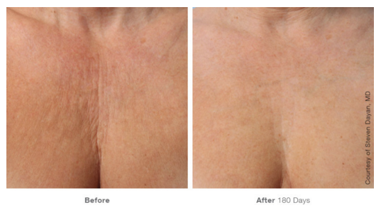 Ulthera® Before and After Photos