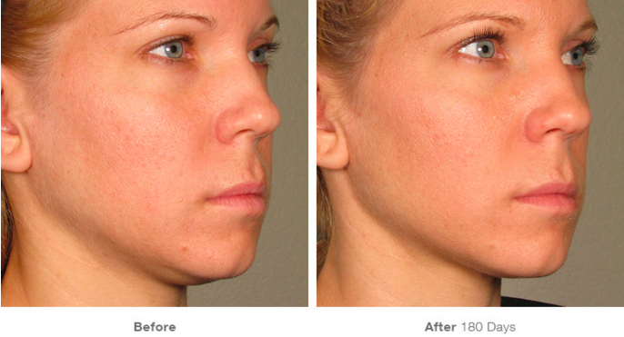 Before and After Ultherapy®