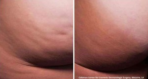 Cellfina™ Cellulite Treatment Before and After Photos