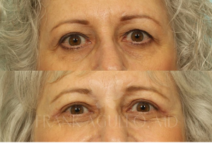 Dr. Agullo Blepharoplasty patient