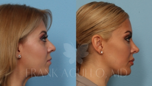 Chin Implant patient by Dr. Agullo