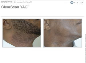 South West Plastic Surgery Clear Scan YAG Laser hair removal marketing photo