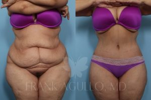 Agullo Tummy Tuck Patient