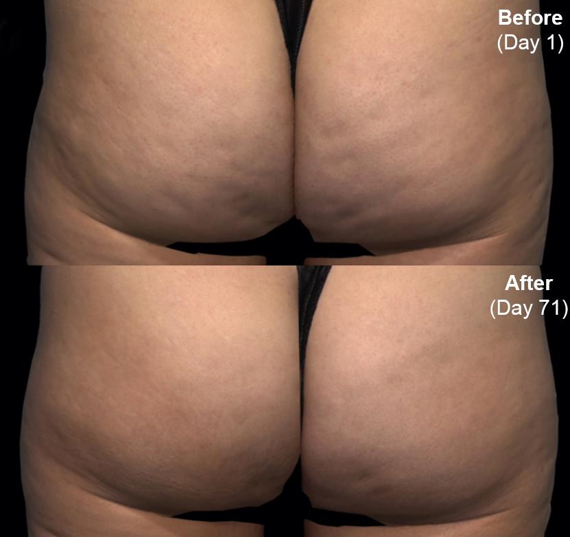 Qwo® (Cellulite Injection Treatment) actual patient results 2