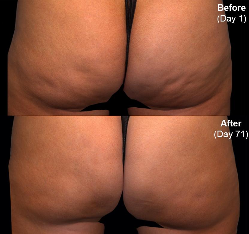 Qwo® (Cellulite Injection Treatment) actual patient results